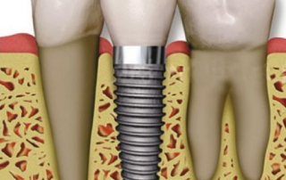 dental implants Delray Beach