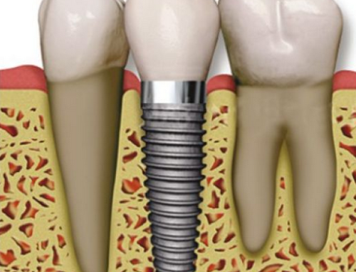 What Are Dental Implants And How Beneficial Are They